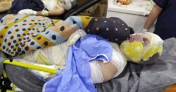 Yangında yaralanan Halepli aile yardım bekliyor
