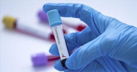 Sivasspor'a 3. kez korona virüs testi yapıldı