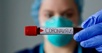 İspanya'da Kovid-19 nedeniyle nüfusun sadece yüzde 5,2'sinde antikor tespit edildi