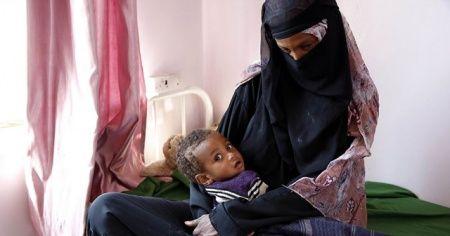 10 milyon insan açlıkla burun buruna