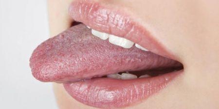 Dil Mantarı Nedir? Dil Mantarı Neden Olur?