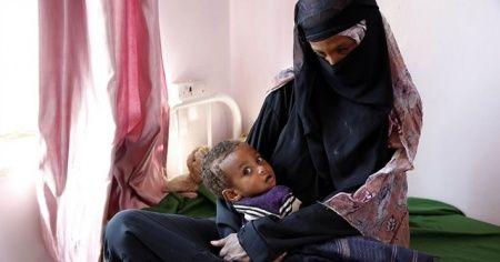 BM: 98 bin çocuk ölüm riskiyle karşı karşıya