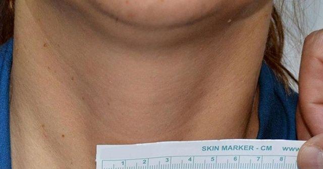 Koronavirüslebirlikte ağrılı tiroit hastalığı arttı