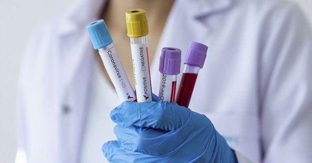 Ukrayna'da koronavirüs vaka sayısında yeni rekor