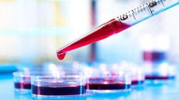 Beyaz Kan Nedir? Beyaz Kan Eksikliği Nelere Yol Açar? Beyaz Kan Düşüklüğüne Ne İyi Gelir?