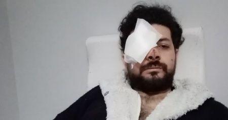 Silahlı kavgada gözünü kaybeden şarkıcı dehşeti anlattı