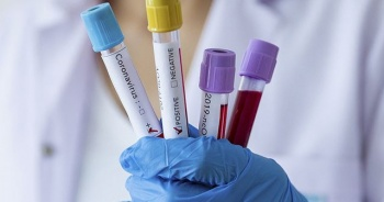 28 Aralık 2020 koronavirüs tablosu: 15 bin 197 yeni vaka, 257 can kaybı