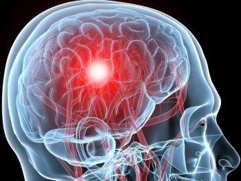 Beyin Kanaması Nedir? Beyin Kanaması Neden Olur?