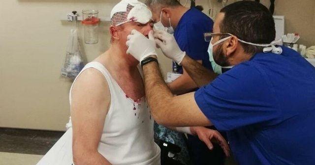 Selçuk Özdağ'a saldırı soruşturmasında firari 3 şüpheli için yakalama kararı