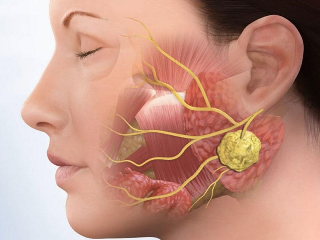 Aktinomikoz ne demek? Aktinomikoz neden olur? Aktinomiçes enfeksiyonu nedir? Aktinomikoz nasıl bulaşır?