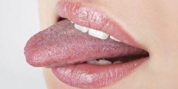 Dil hastalık ve yaraları nedir?/ Dil acıması neden olur?