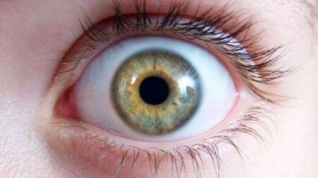 İris İltihabı (İritis) Göz Romatizması Nedir Neden Olur?