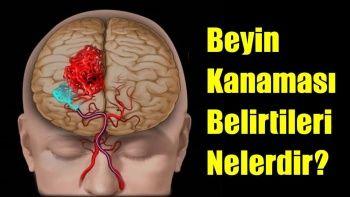 Beyin Kanaması (Anevrizma) Nedir? Beyin Kanaması Öldürür mü?