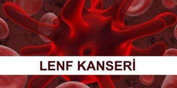 Lenfoma Kanseri Nedir? Lenfoma Kanseri Tedavi Yöntemleri Nelerdir?