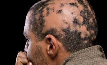 Saçkıran (Alopesi Areata) Nedir Tedavisi Nasıl Yapılır?