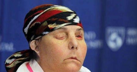İki kez yüz nakli yapılan kadın yeni yüzünü gösterdi