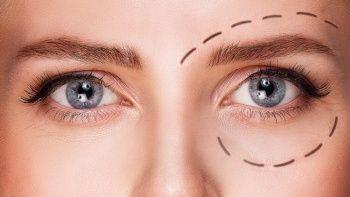 Göz estetiği nedir? Göz kapağı ameliyatı riskli mi?