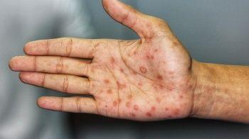 Tifo Hastalığı (Kara Humma) Nedir?