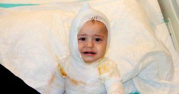 Üzerine kaynar süt dökülen 1 yaşındaki çocuk feci şekilde yandı
