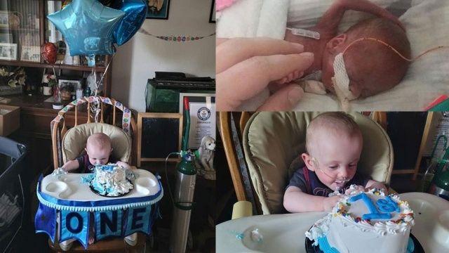 Dünyanın en erken doğan bebeği Guinness Rekorlar Kitabı'na girdi