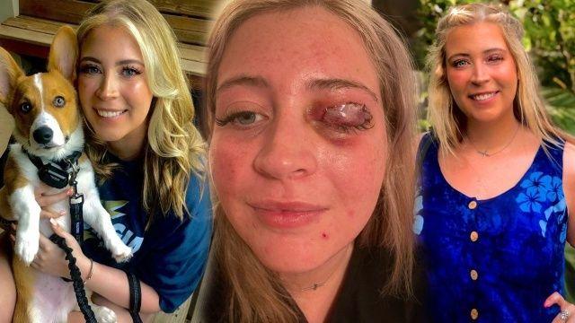 Kirpik taktırmak isterken köpek saldırdı göz kapağından oldu