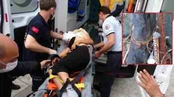 Samsun'da çocuk, yanağındaki demirle hastaneye kaldırıldı