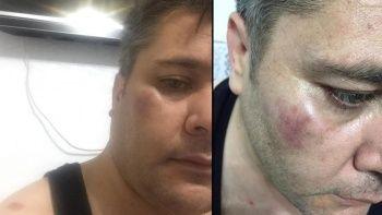İHA muhabirine çirkin saldırı: Yüzüne sert bir cisimle vurdular