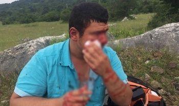 İHA muhabirine çirkin saldırıda 4 şüpheliden 1'i tutuklandı