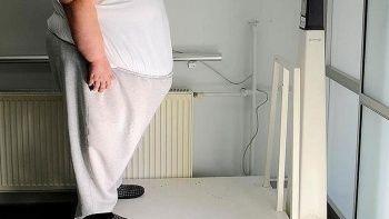 Obezite ameliyatlarına kriterler geliyor