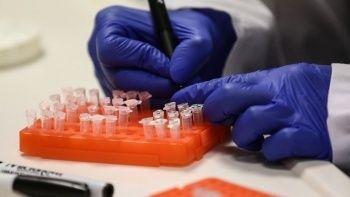 ABD'de 'maymun çiçeği' virüsü alarmı: 200'den fazla temaslı izleniyor