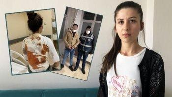 Eşi tarafından kaynar suyla yakılan kadının feryadı: Ölmek istemiyorum