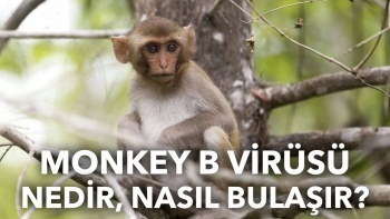 Monkey B virüsü nedir? Monkey B virüsü nasıl bulaşır?