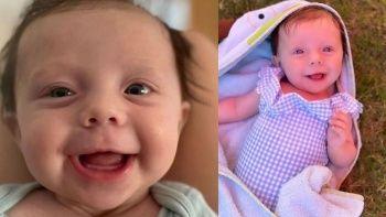 Nadir görülen hastalık yüzünden 5 aylık bebek taşa dönüyor