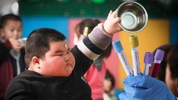 Uzmanından korkutan uyarı: Obezite Kovid-19'da ölüm riskini artırıyor!