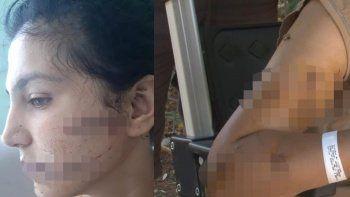 100 yerinden bıçaklanan kadın yaşadığı dehşeti böyle anlattı
