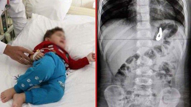 Çocuklarda 'yabancı cisim yutma' vakası arttı! 19 aylık Murat'ın midesinden 17 boncuk çıktı