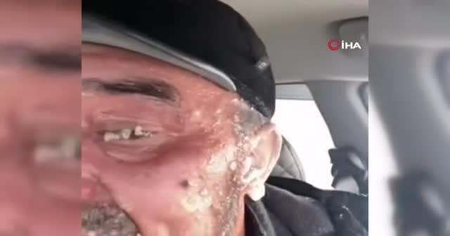 Otoyolda mahsur kalan adamın kulakları dondu