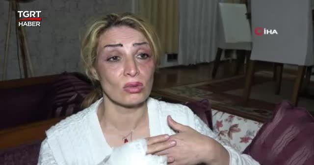 Eşinden öldüresiye dayak yiyen kadın İHA'ya konuştu