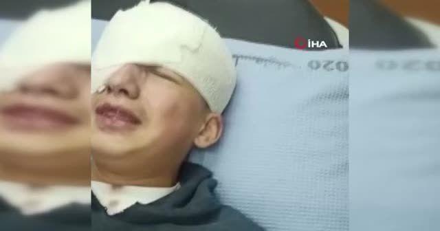 İsrail güçleri Filistinli çocuğu gözünden vurdu